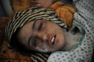 Teenager Sahar Gul recovers in hospital after being beaten and tortured by her in-laws © AFP PHOTO/ SHAH Marai